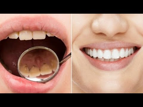 Cuma 2 Menit Bisa Bikin Gigi Kuning Menjadi Putih