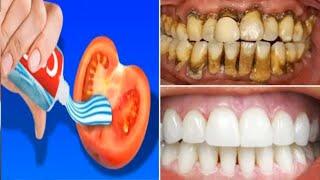 Phương pháp làm trắng răng kỳ diệu sau 2 phút răng xỉn màu ố vàng cũng trắng bóc-How to whiten teeth