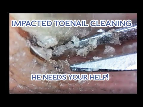 Client Cleans His Impacted Toe! I need your help! thumbnail