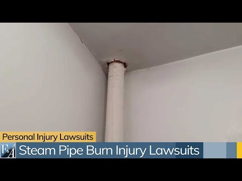 New York Burn Injury Lawyers Discuss Contact Burns From A Steam Pipe In Apartment Buildings