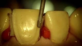 Препарирование зубов под операционным микроскопом(Над видео работала врач-интерн кафедры терапевтической стоматологии Первого МГМУ им. И.М. Сеченова Логунов..., 2012-02-15T18:11:53.000Z)