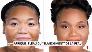 Le phénomène de la dépigmentation de la peau en Afrique