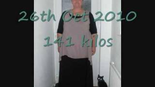 Pictures after weightloss surgery showing weightloss from all angles!! 23.11.10