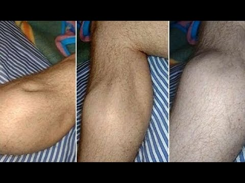 why-your-legs-cramp-at-night-and-how-to-keep-it-from-happening-again