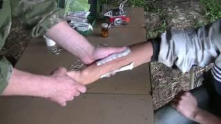 первая помощь Ушивание раны в полевых условиях без садо   мазохизма