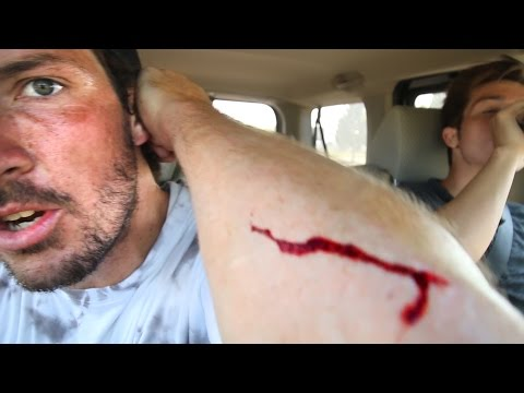 Attacked By A Scooter!!?