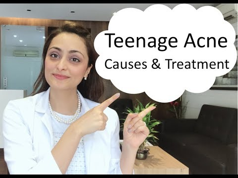 Teenage Acne:  causes  & treatment