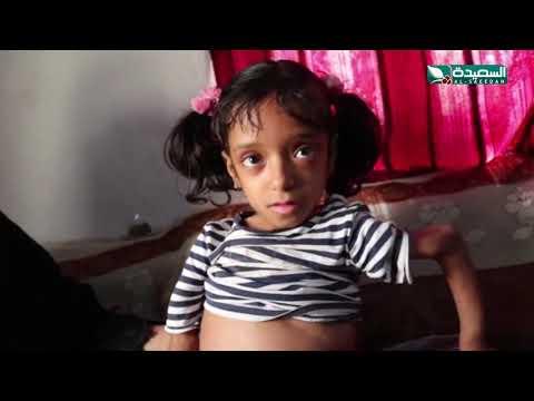 طفلة تعاني من مرض العظم الزجاجي وتحتاج للمساعدة