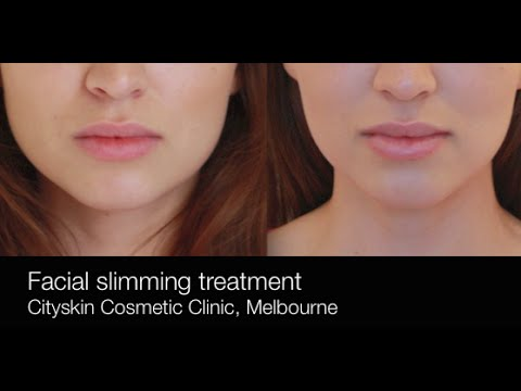 How to slim the face with anti-wrinkle injections / Facial ...