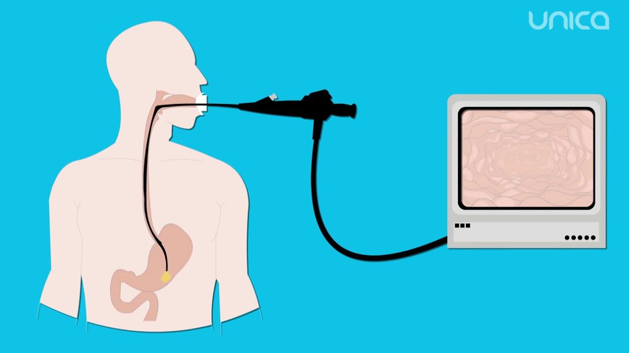 Totul despre endoscopie