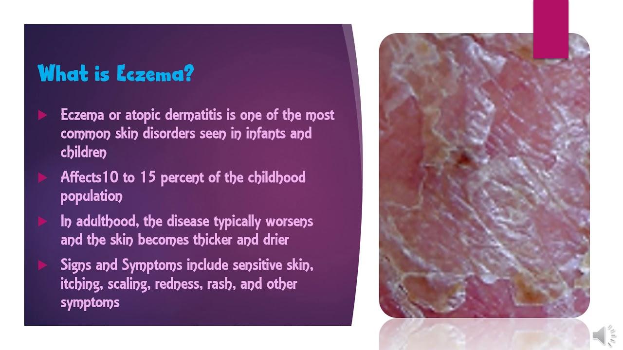 Aveeno Eczema Therapy Daily Moisturizing Cream = Skin Care