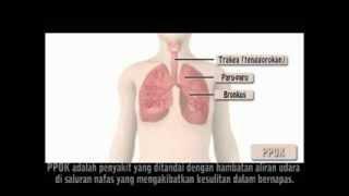 PPOK Penyakit Paru Obstruktif Kronis.