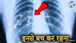 इंसानी शरीर में जब मिली जिंदा चीज़े - Hindi countdown