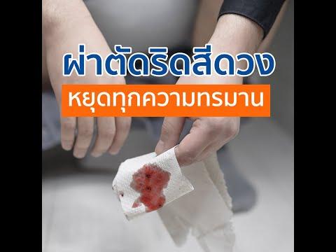 ผ่าตัดริดสีดวง หยุดทุกความทรมาน l โรงพยาบาลเวชธานี