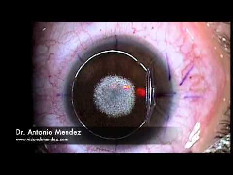 LASIK procedure at Mendez Vision Institute
