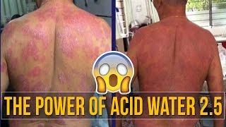 The Power Of Enagic Kangen Water Strong Acid Water 2.5