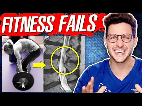 A Doctor Reveals the 10 Most Common Fitness Mistakes His Patients Make