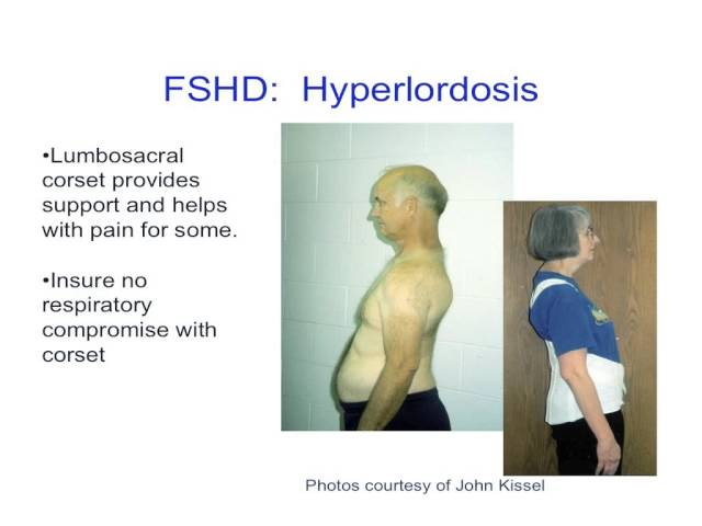 FSH Society Atlanta Meeting: Improving clinical knowledge and understanding of FSHD
