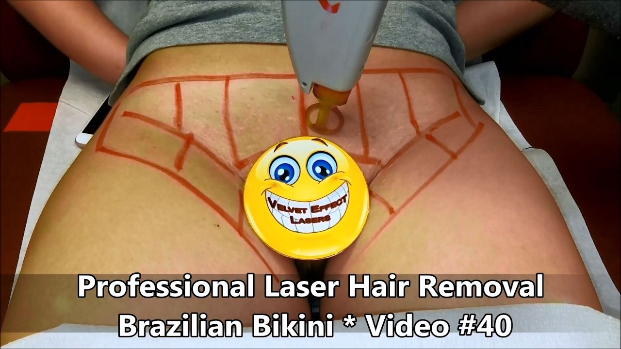 Professional Laser Hair Removal Brazilian Bikini Video