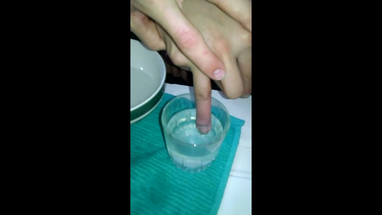 Infected Hang Nail POPPED! - YouTube