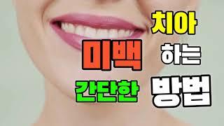 누런이 하얗게 하는법 | 치아 미백 | 이빨 하얗게 하…