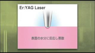 YAGレーザー装置アーウィン アドベールのご紹介 にいむら歯科医院インプラントセンター(立川市)