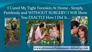 phimosis treatment cream - phimosis treatment circumcision