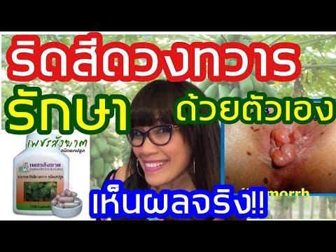 ริดสีดวงทวาร วิธีรักษาด้วยตนเองง่ายๆ ไม่ต้องหาหมอ  เห็นผลจริง หายได้ใน 7วัน  Hemorrhoid Mumuang