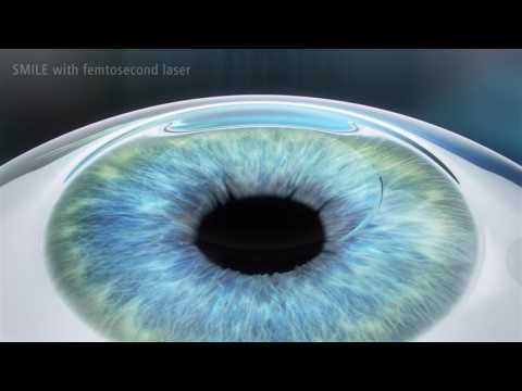 SMILE   The 3rd Generation of Laser Vision Correction   Medical Technology  ZEISS Italia 1