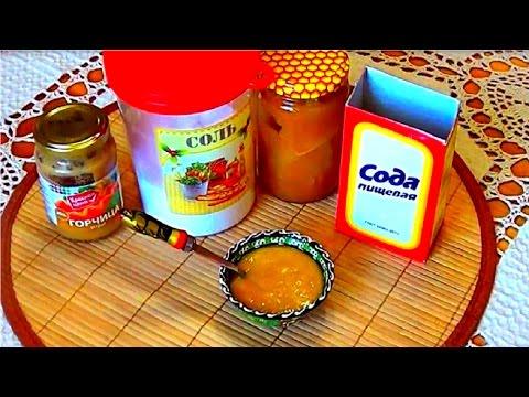 Лечение суставов.Поможет компресс(соль,сода,мед,горчица)