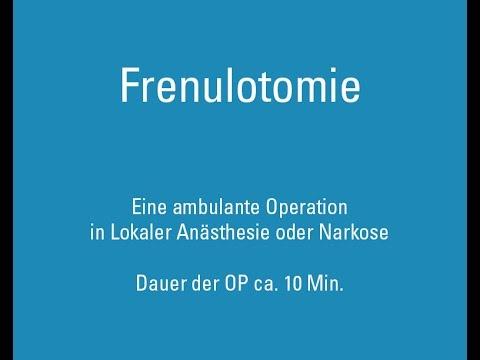 Frenulotomie