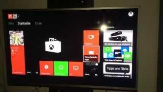 Xbox One - Spiele schneller Installieren [HD] [GERMAN]