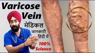 VARICOSE VEIN : Kyun hota hai? Kaise Theek hoga? पूरी  मेडिकल जानकारी  हिंदी में   Dr.Education