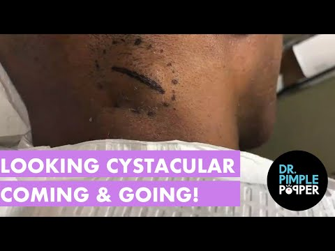 Looking Cystacular Coming & Going from YouTube · Duration:  9 minutes 43 seconds