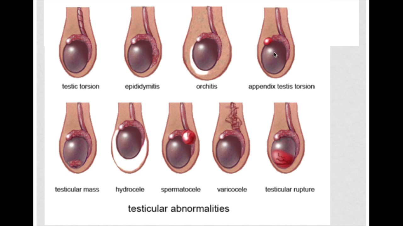 Testicular Torsion, OUCH!!! - YouTube