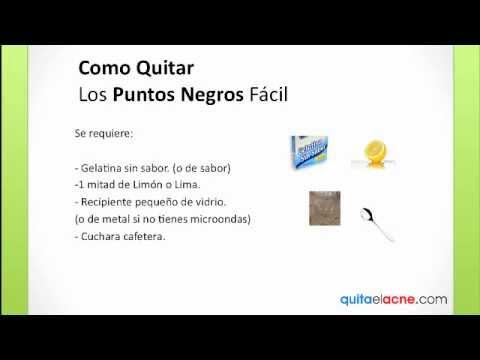 Como Quitar Los Puntos Negros - YouTube