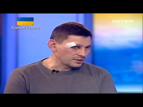 Ukraine War - Ukrainian TV journalist on his brutal beating in Crimea Ukraine
