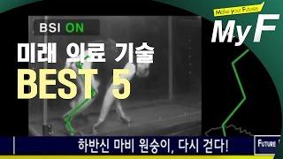 [미래 랭킹쇼] 미래 의료기술 BEST 5 (미래예보 on tomatoTV) #미래채널 #마이에프 #myf