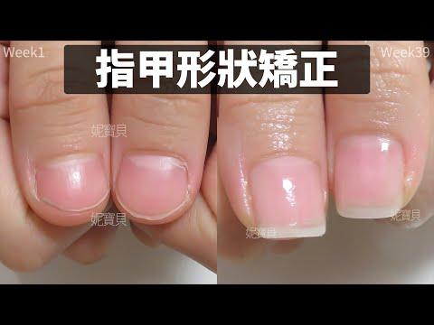 建甲案例|高雄大學生|健甲凝膠矯正指甲形狀|指甲矯正過程