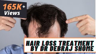 Cost Of Stem Cell Therapy For Hair Loss In Mumbai | Stem