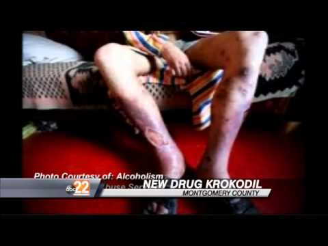 Krokodil: The Deadly New Drug