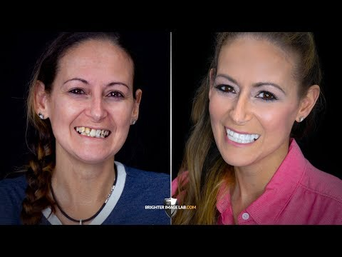 Addiction and Prison to Recovery! Life Changing Extreme Smile Makeover by Brighter Image Lab!