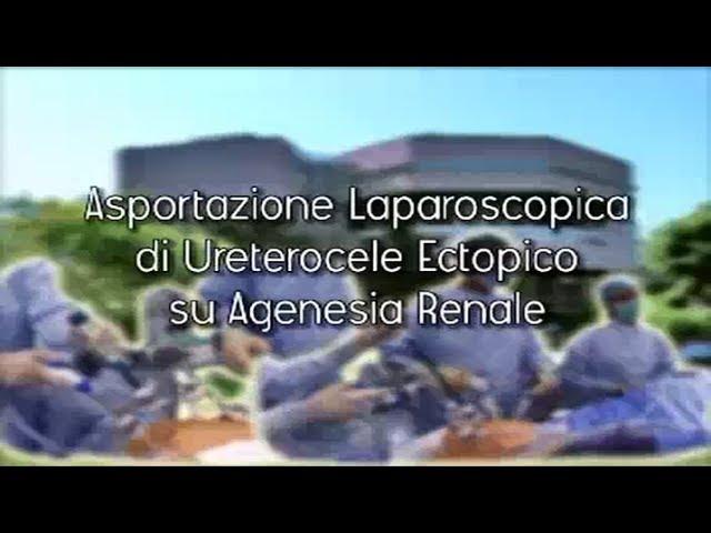 Laparoscopic surgery - Asportazione laparoscopica di ureterocele ectopico su agenesia renale