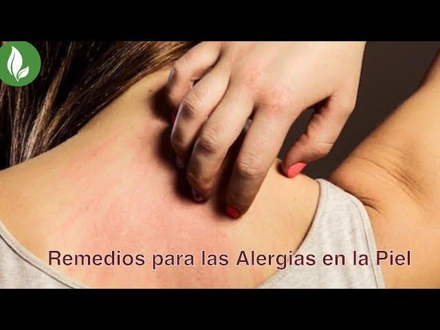 Remedios para las Alergias en la Piel