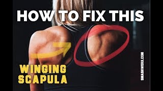 REAL WINGED SCAPULA FIX | SmashweRx | Trevor Bachmeyer