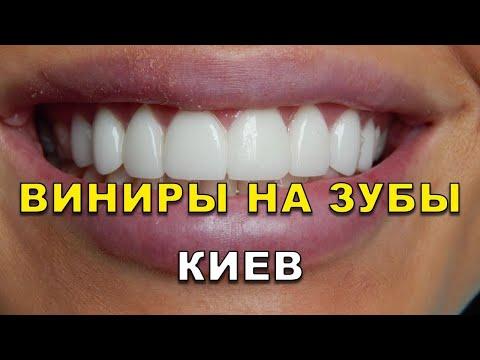 Виниры в Киеве. Видео - Виниры для зубов в клиниках ЛюмиДент