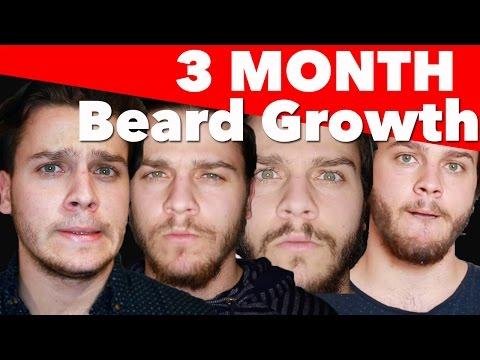 3 Month Beard Growth