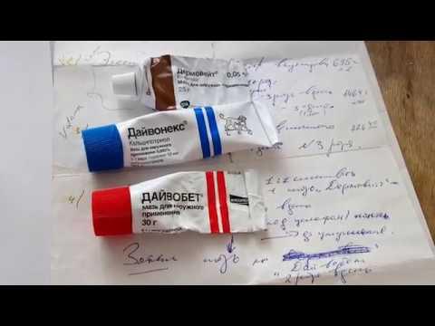 Псориаз,лечение(ладонно подошвенный)