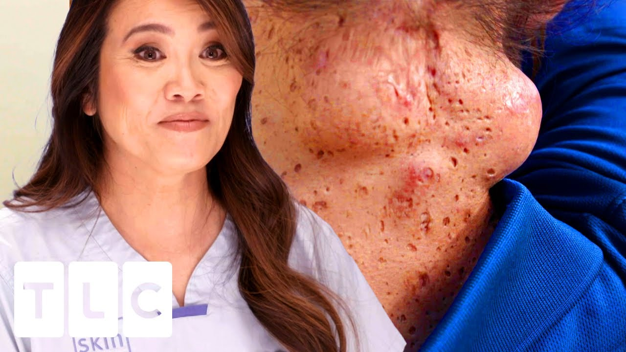 Download CYST-ception: A Cyst INSIDE A Cyst (SQUIRT-ALERT!) | Dr. Pimple Popper