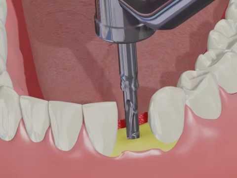 ADIN Single Tooth Restoration With Touareg NP